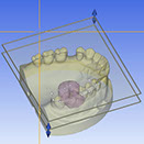 Quadrant Trays - Artimax Dental Articulators