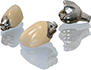 Custom Dental Implant Abutments